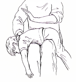 Verschlucken bei Kindern
