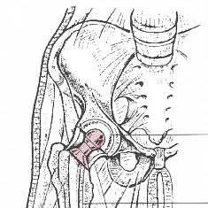 Arthrose,  Abnutzungs - oder Verschleißerscheinung