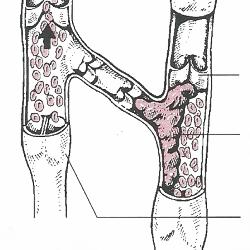 Oberflächliche Venenentzündung (Phlebitis)